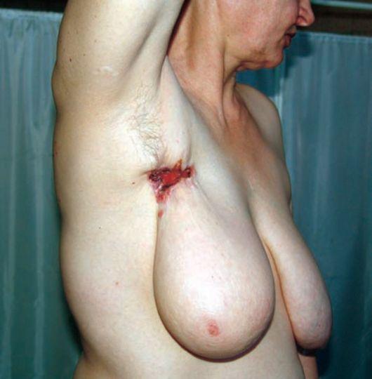 рубец при гумме в третичном сифилисе