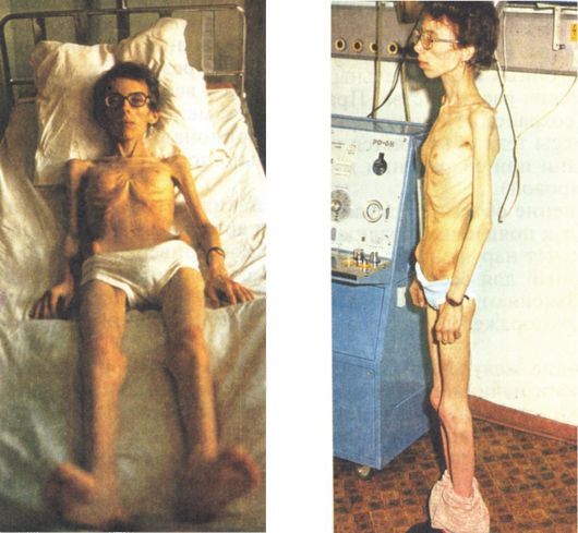 Дистрофия и анорексия разница