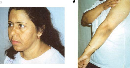Болит поясница причины почки или спина