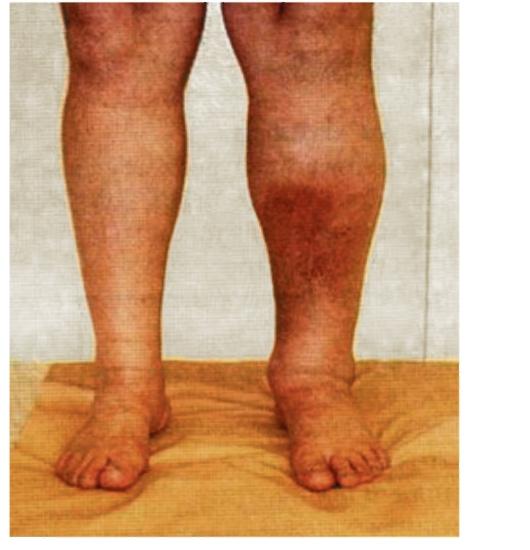 Из за диабета может ли опухать ноги