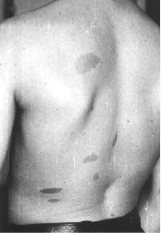 Нейрофиброма фото