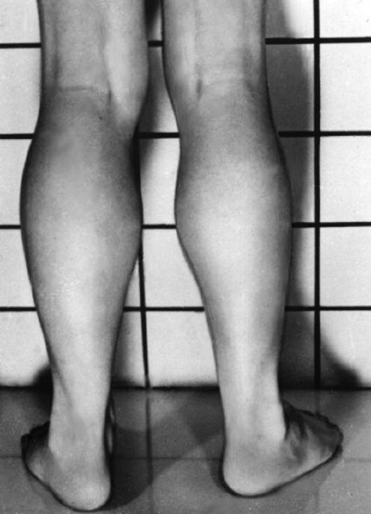 Миопатия Дюшенна фото
