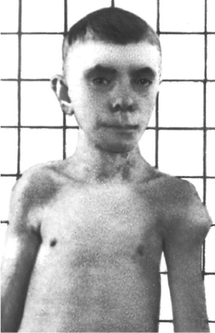 Синдром Лан- гера-Гидеона.