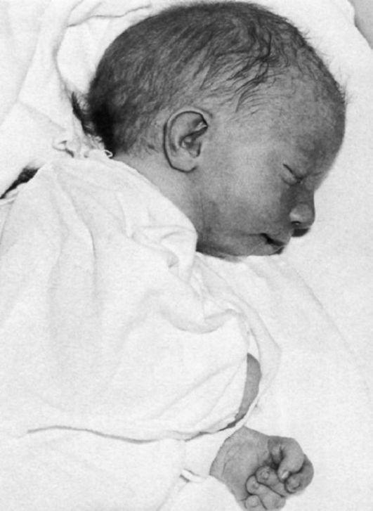 Новорожденный редко