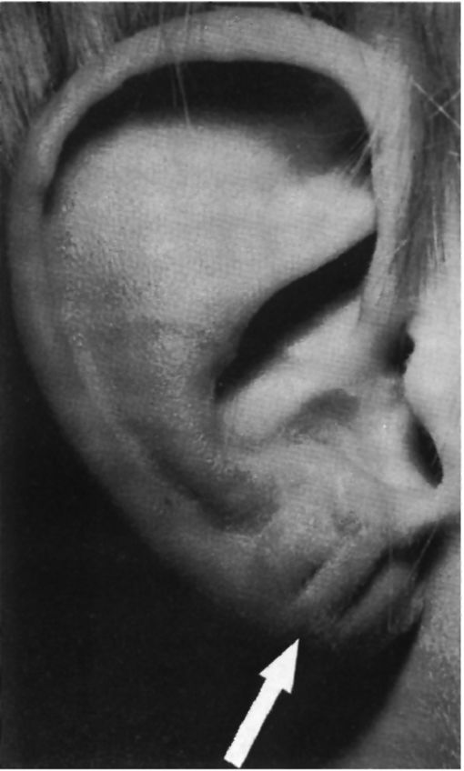 Синдром Бриквита фото