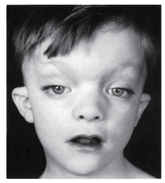 Синдром Сотоса фото