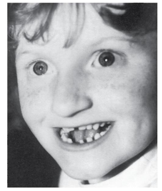 Синдром Прадера — Вилли фото