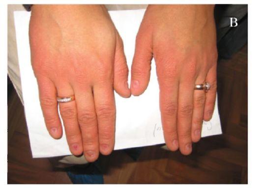 Дисплазия пальцев