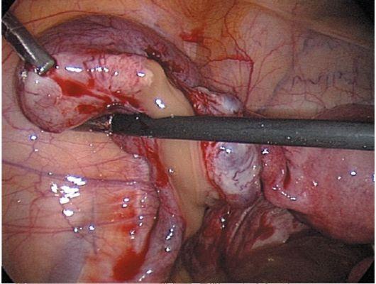 восполительные процессы женских половых органов: