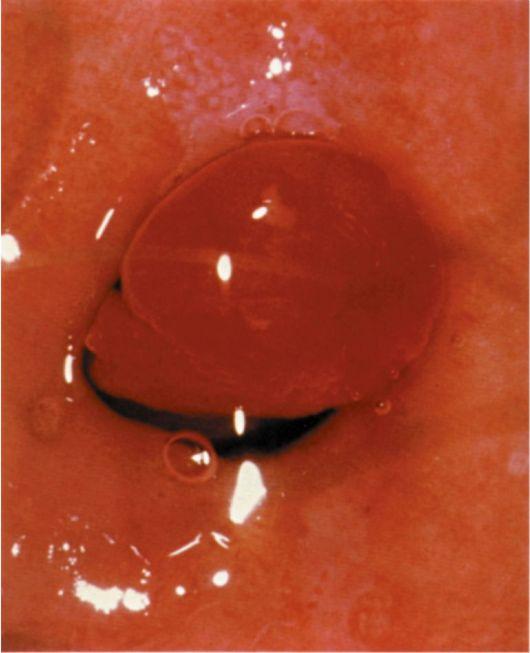 Лечение звона в ушах при шейном остеохондрозе