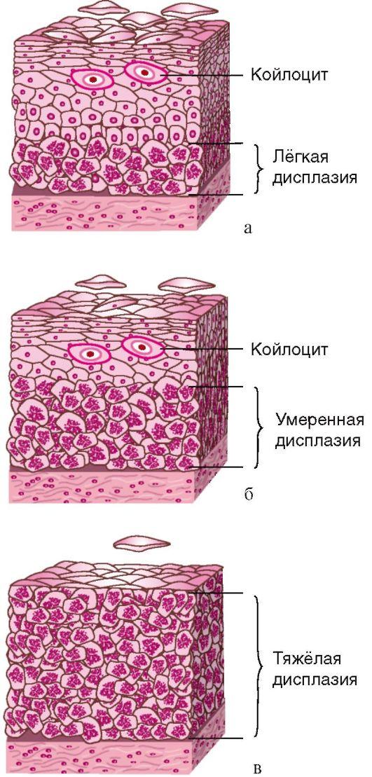 Резекция Эндометрия Трансцервикальная фото