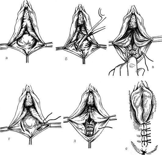 razriv-vaginalnoy-tkani