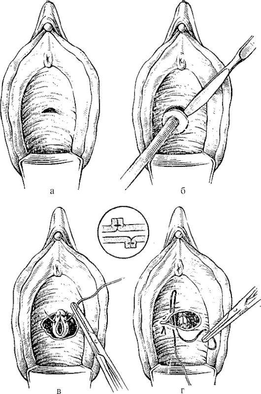 Травмы половых органов у девочек