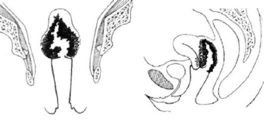 smeshannaya-forma-vlagalishno-parametralniy-variant