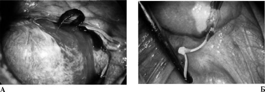 Фото половых органов старых бабок фото 156-179