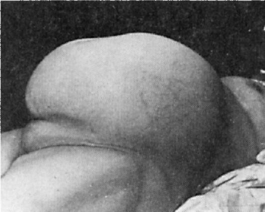 Шеечный оргазм
