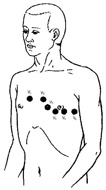 Места наложения 6-ти грудных