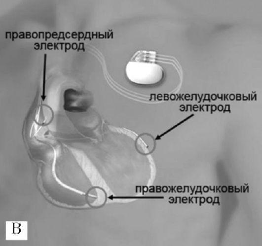 Панель В: схема расположения