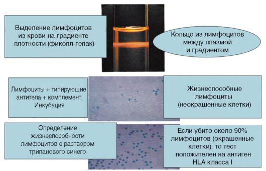Рис. 3.2. Микролимфоцитотоксический тест (серотипирование