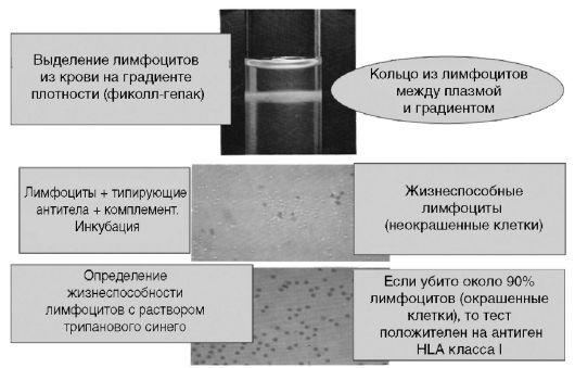 Рис. 4.2. Внешний вид стекол с результатами РИД и