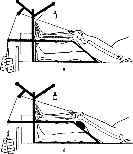 Вытяжение при переломе бедра в