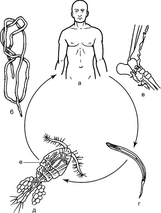 локализация паразита в организме человека