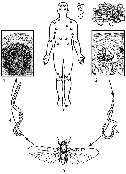 Микрофилярия фото