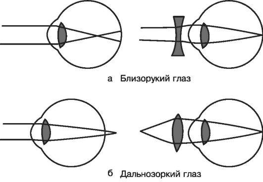 Близорукость и дальнозоркость схема глаза