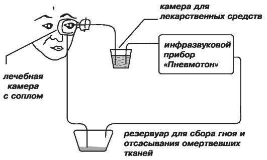 Схема инфразвукового