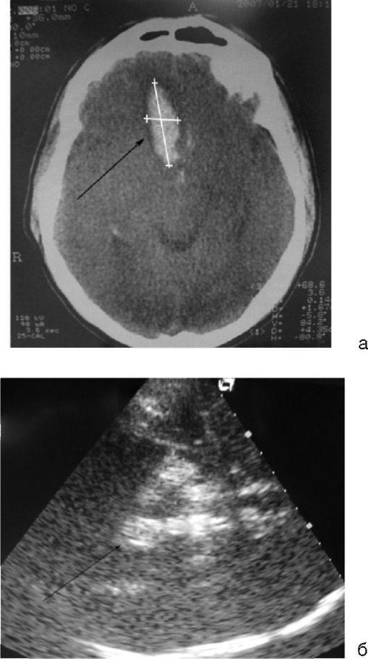 Пневмоэнцефалография