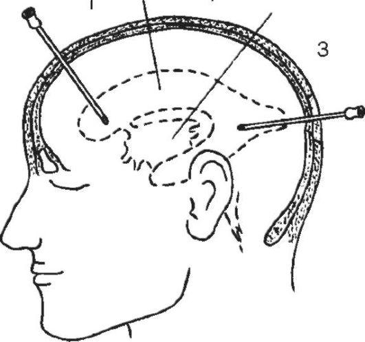Пункция головного мозга что это такое
