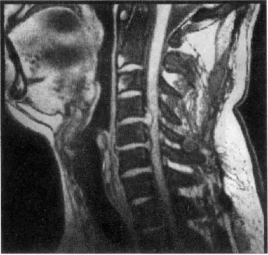 Потеря сознания от защемления в шейном отделе