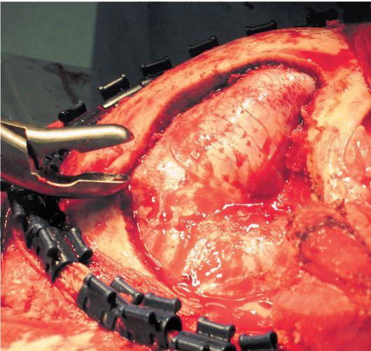 трепанации черепа