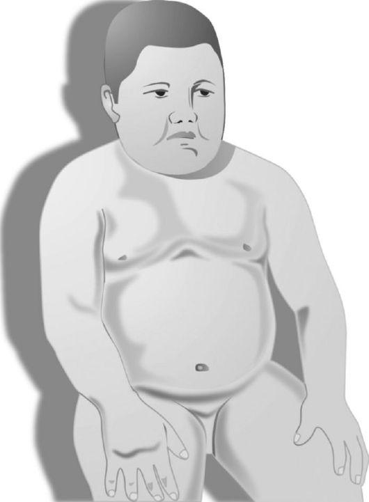 Синдром Таламический фото
