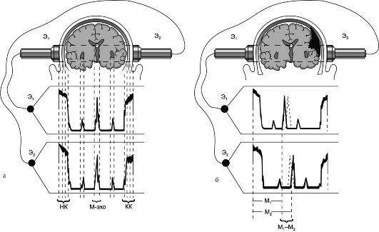 ангиография сосудов головного мозга цена в москве