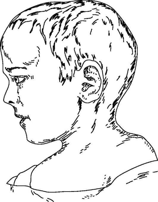 Олигодактилия