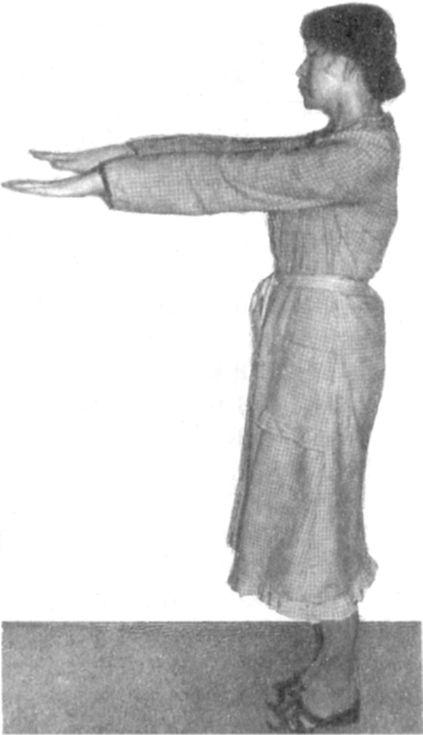 Симптом Ромберга фото
