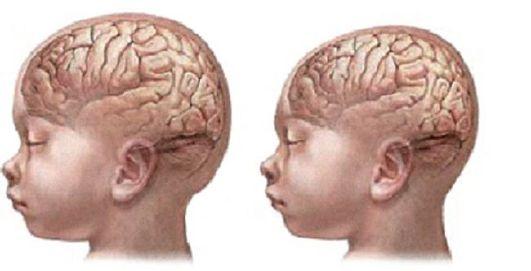 Увеличенные лобные доли у ребенка фото
