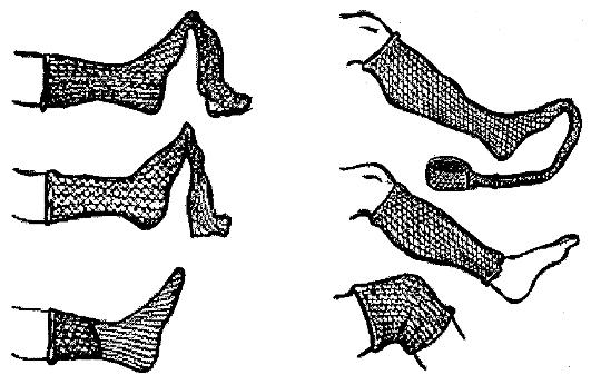 Этапы наложения повязки из