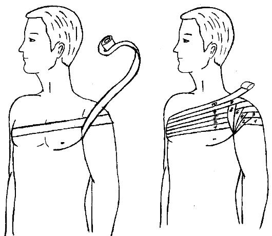 Методика наложения асептической повязки при ранениях в области плечевого сустава американский протез тазобедренного сустава