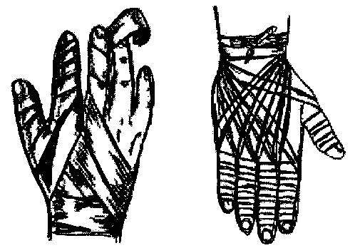 Повязка на пальцы кисти.