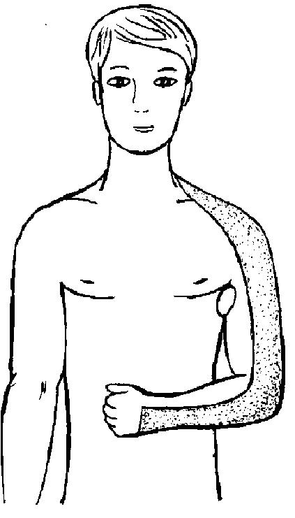 Повязка на руку при перелоИдеи для декора