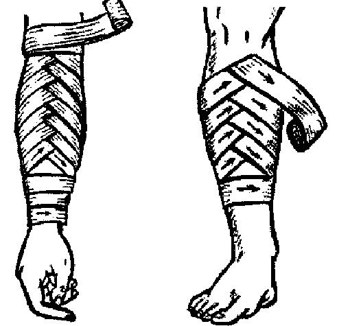 Спиральная повязка на