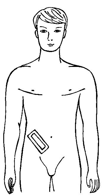 Клеоловая повязка на передней