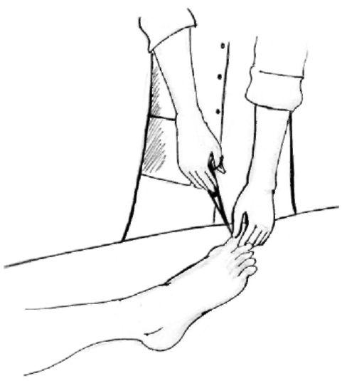 уход за ногтями тяжелобольного пациента