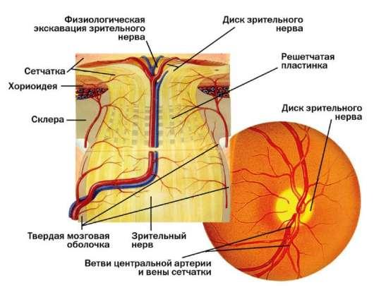Optic nerve glioma in adults