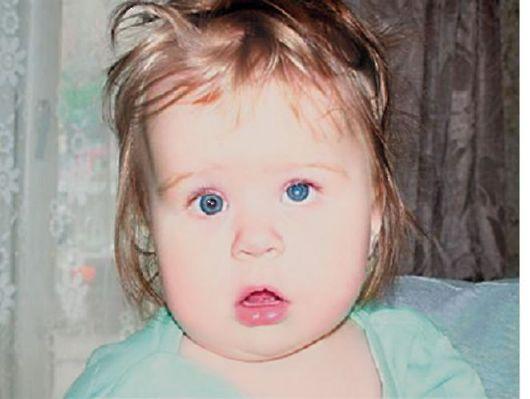 Синдром мартена олбрайта псевдогипопаратиреоз