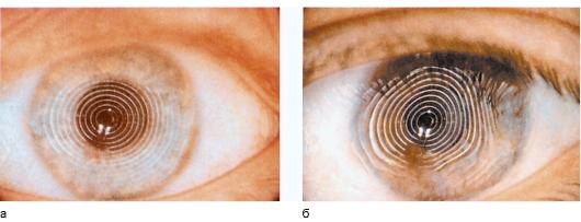 Как восстановить зрение если близорукость