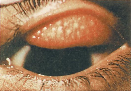 filmi-s-trahom