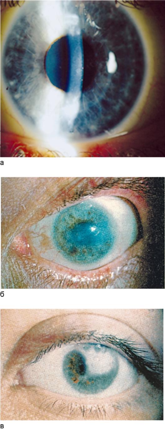 известковый густой раствор попал в глаз